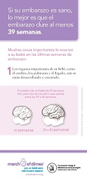 Late Preterm Brain Development Flyer Spanish