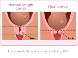 Pregnant Cervix
