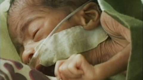 World Prematurity